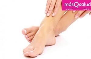 Elimina los hongos de tus pies